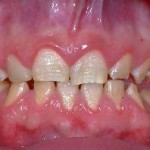 manchas dentes