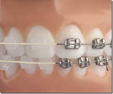 aparelho ortodontico preço