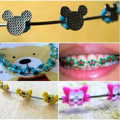 borrachinhas de aparelho do Mickey e da Minnie