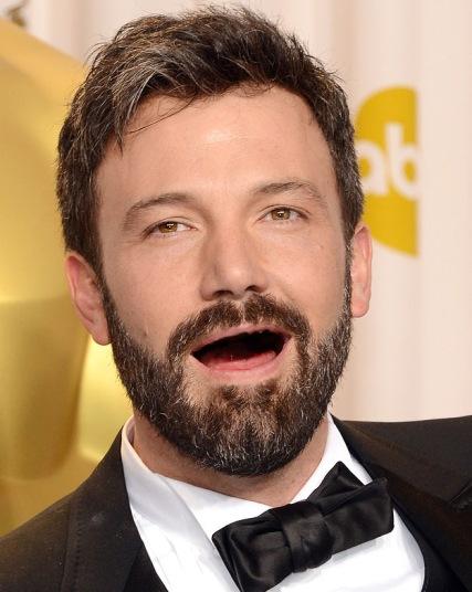 atores de hollywood sem dentes (6)