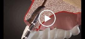 Animação 3D de como se coloca um implante dentário
