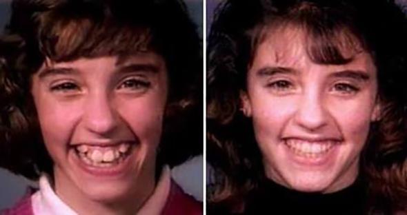 ortodontia antes depois