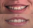 correcao-sorriso-gengival-laser
