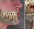 como-se-forma-a-carie-nos-dentes