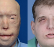 transplante-rosto-1
