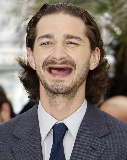 atores de hollywood sem dentes (7)
