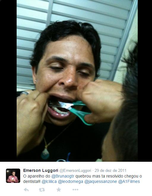 aparelho-dentes-8