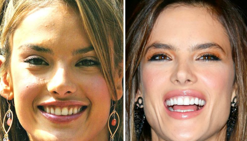 famosas antes depois dentista